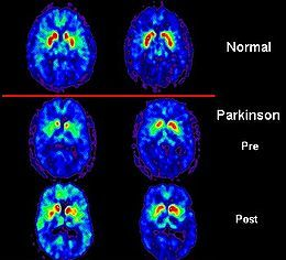 Highlights on New Parkinson's Research