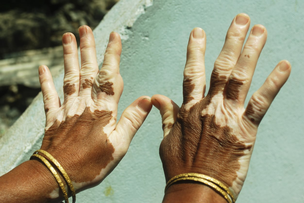 Study Digs Into Why Loss Of Skin Pigmentation From Vitiligo Also Reduces Skin Cancer Risk 23andme Blog