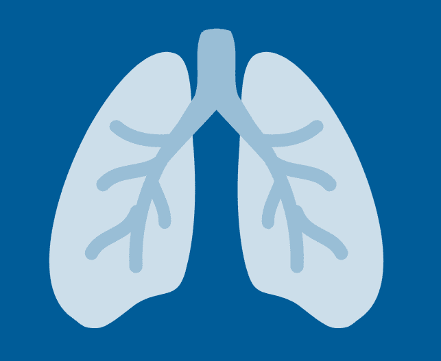 Illustration for Idiopathic Pulmonary Fibrosis